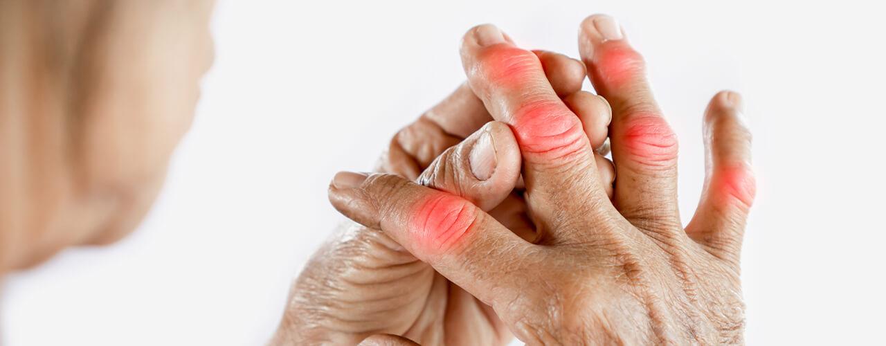 Pain Relief for Arthritis Edmonton, Alberta CA