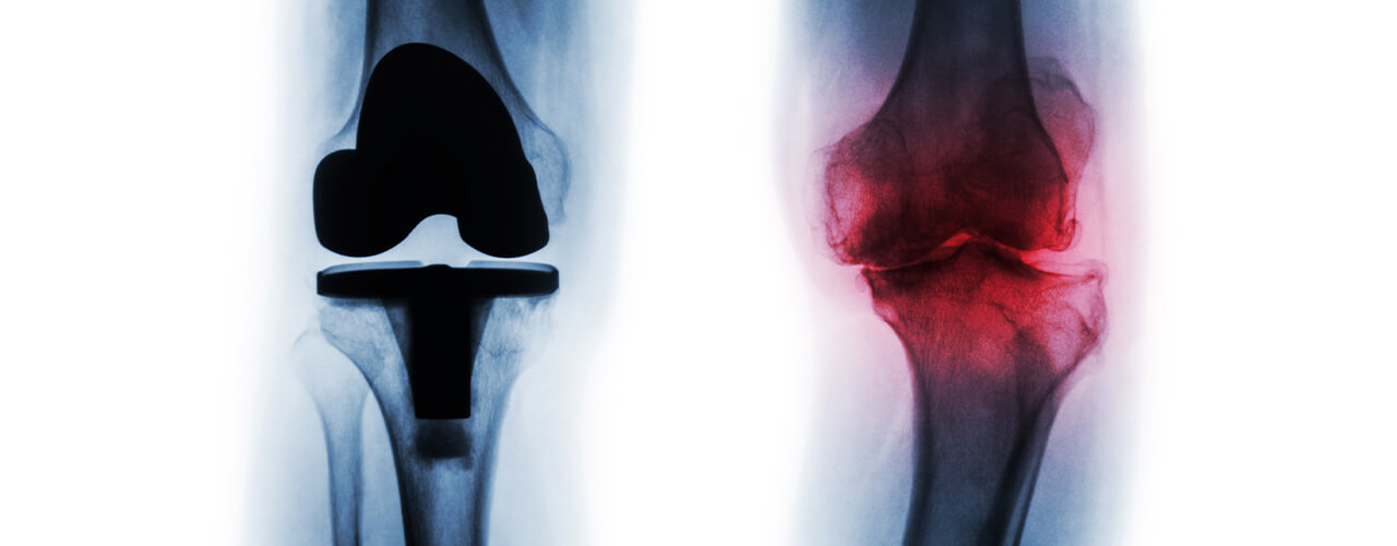 Total Joint Replacement Edmonton, Alberta CA