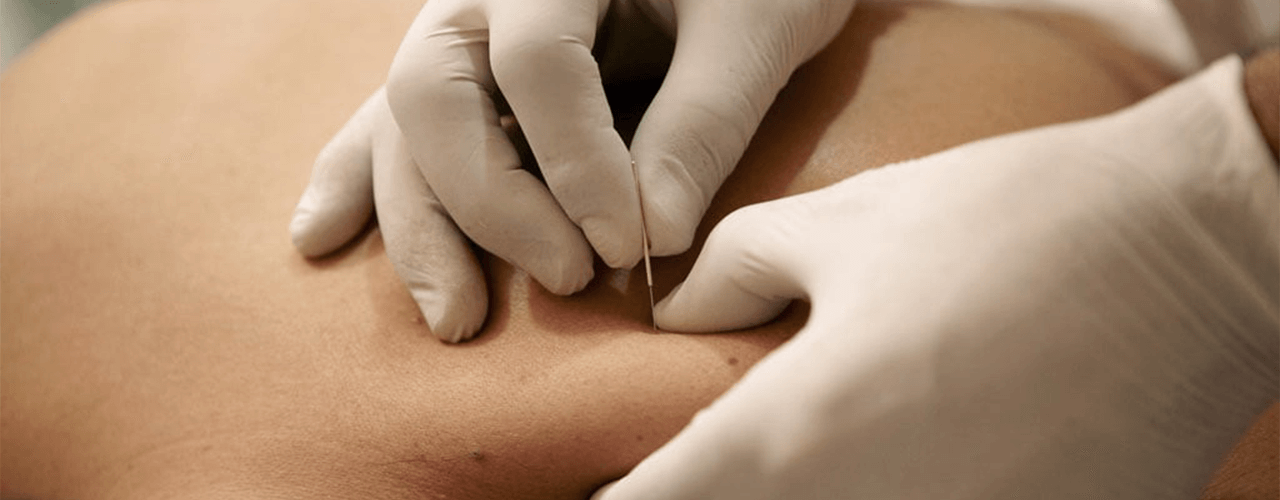 dry-needling-stride-sports-and-physiotherapy